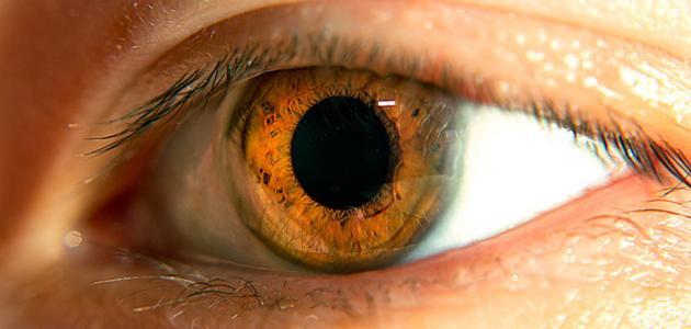 كيفية علاج قصر النظر