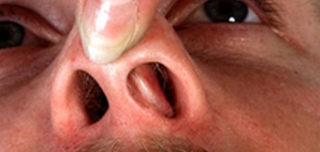 ما هي أعراض اللحمية في الأنف