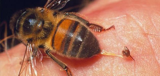 ما علاج لسعة النحلة