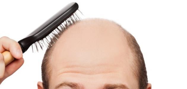 ما هي الأمراض التي تسبب تساقط الشعر