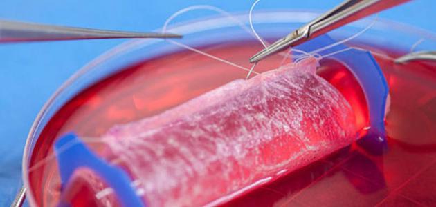 ما هي أعراض تسمم الدم