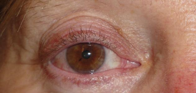 ما هي أسباب تورم جفن العين