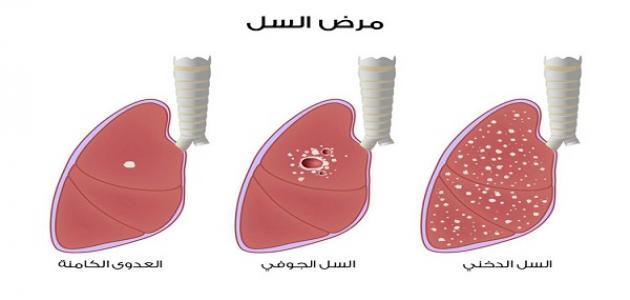 ما هي أنواع أمراض الرئة