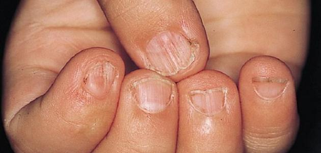 ما هي أعراض نقص الحديد