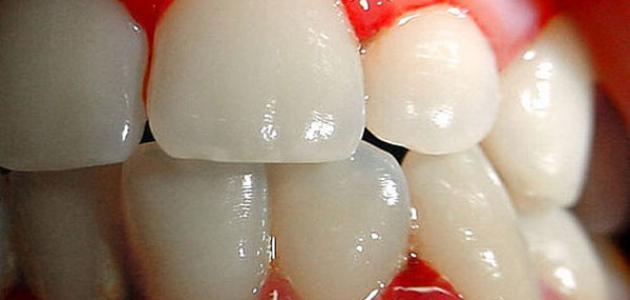 ما هو علاج التهاب لثة الأسنان