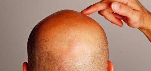ما هو علاج خلل الهرمونات