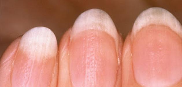 ما هو سبب ظهور بقع بيضاء على الأظافر