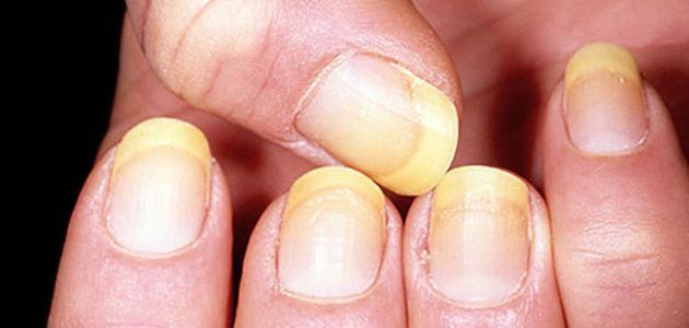ما هي الأمراض التي تصيب الأظافر