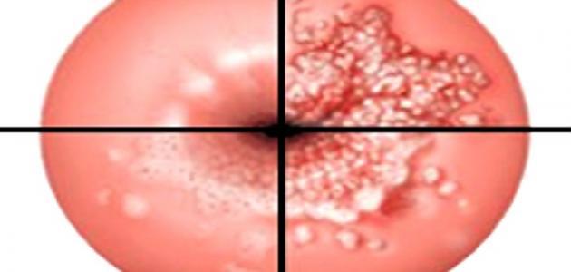 ما هي أعراض قرحة الرحم