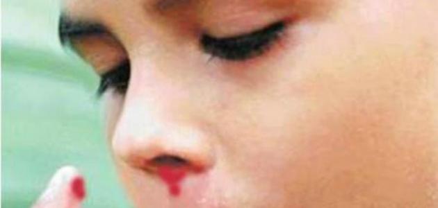 ما هي أسباب نزول الدم من الأنف