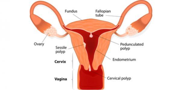 ما هي أعراض لحمية الرحم