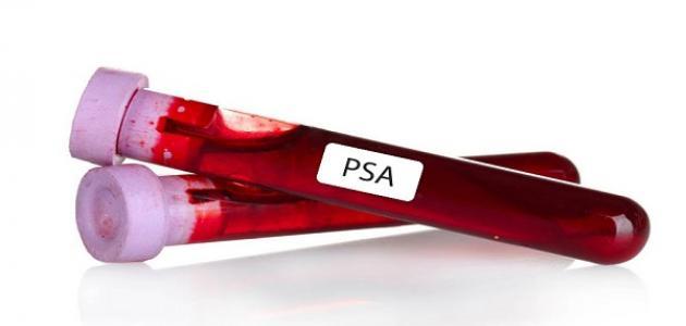 ماذا يعني فحص PSA