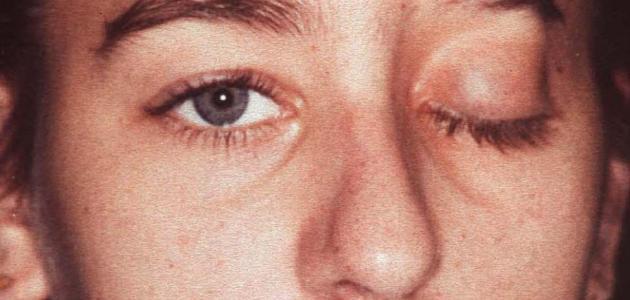 ما هي أعراض العصب السابع