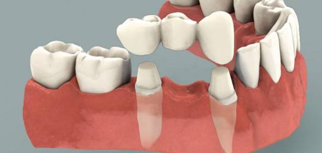 ما هو جسر الأسنان
