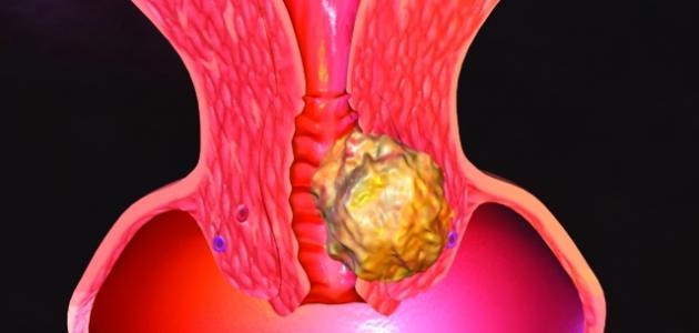 ما هي أمراض عنق الرحم