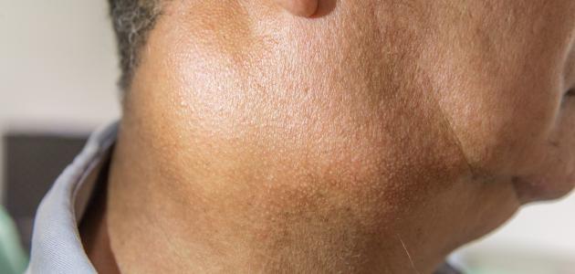 ما هي أعراض التهاب الغدة اللمفاوية