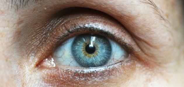 ما هو سبب وجع العين