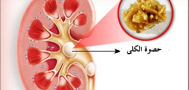 ما هي أعراض رمل الكلى
