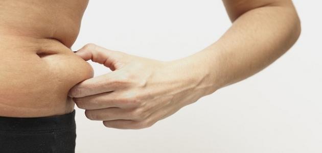 ما هي أعراض الكوليسترول