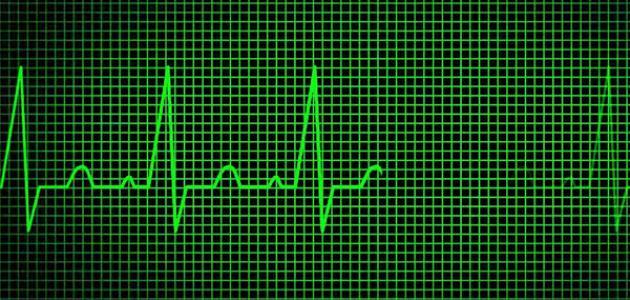 ما هو علاج ضربات القلب السريعة