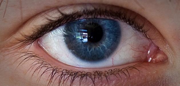 ما هي أعراض بعد النظر
