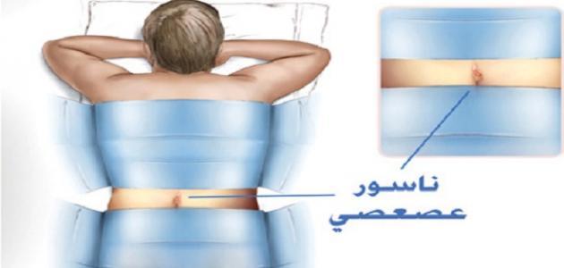 ما هي أعراض الناسور العصعصي