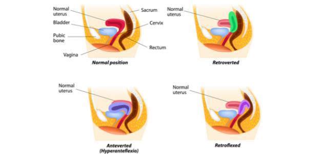 ما هو ميلان الرحم