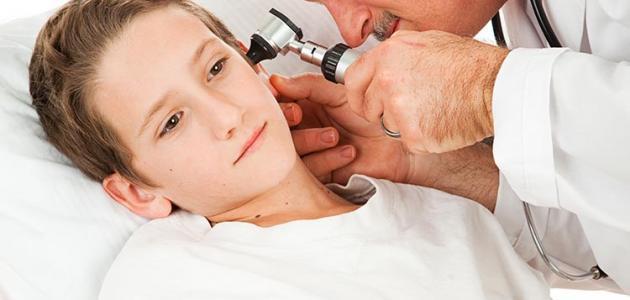 ما هي أعراض التهاب الأذن الوسطى