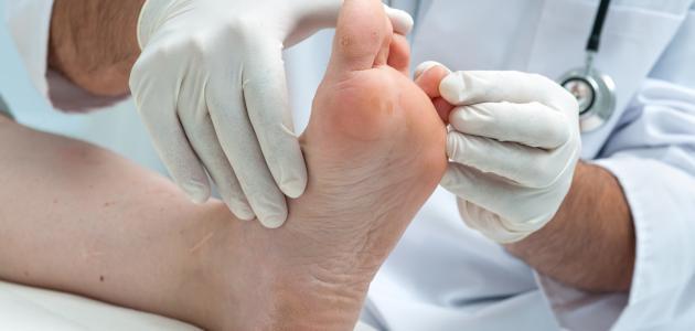 ما هي أعراض مسمار القدم
