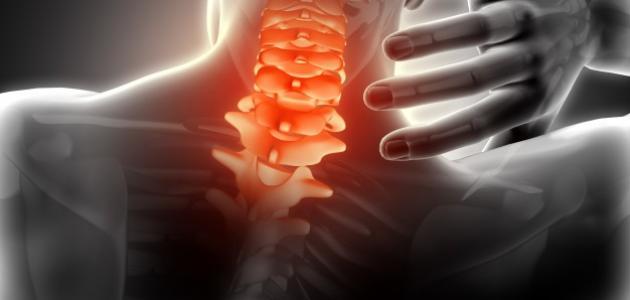 ما هي أعراض ديسك الرقبة