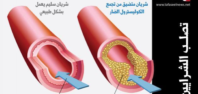 ما هي نسبة الكوليسترول الطبيعية