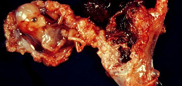ما هي علامات الحمل خارج الرحم