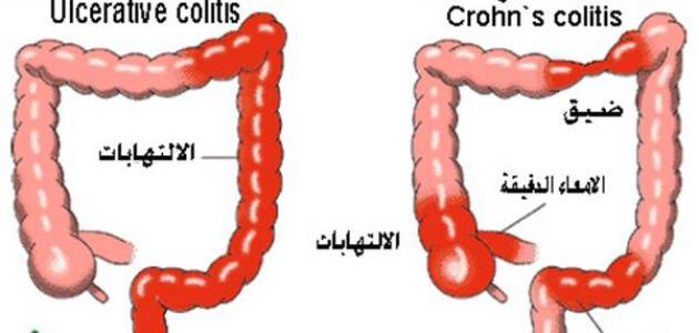 b448cee88 كيفية علاج مرض كرون - موضوع
