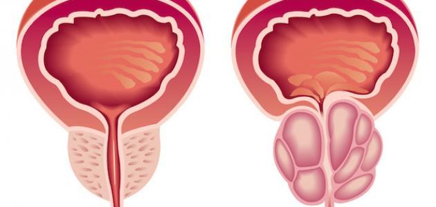 ما هي أعراض البروستاتا