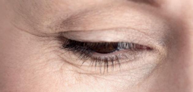 كيفية علاج تجاعيد حول العين