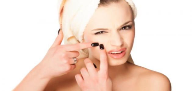 كيف أزيل البقع من الوجه