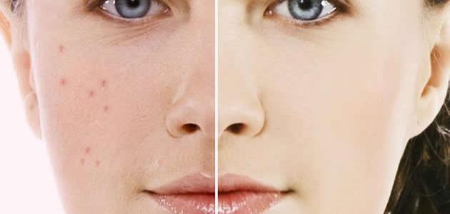 طريقة تصفية الوجه