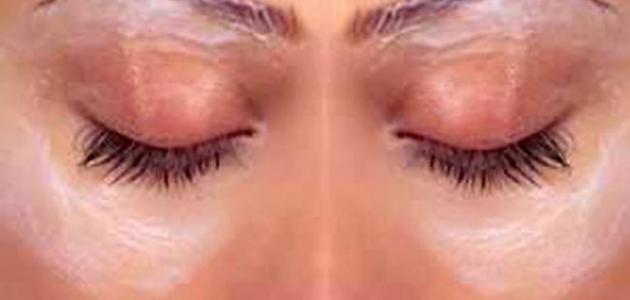 طريقة لإزالة السواد تحت العين