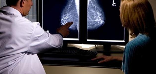 مراحل علاج سرطان الثدي