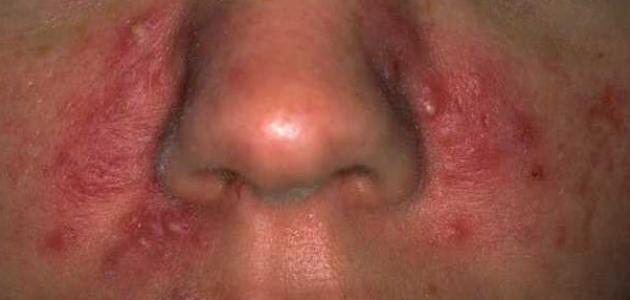 طرق إزالة الحبوب من الوجه