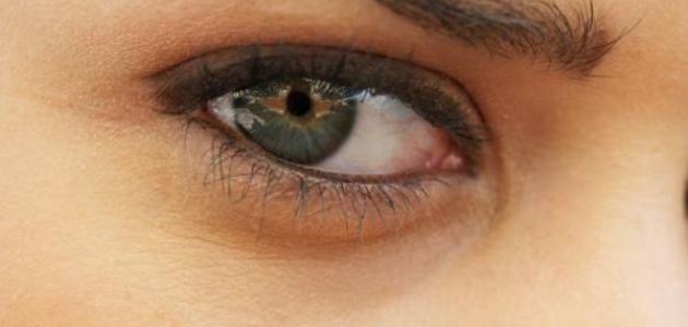 طرق إزالة الهالات السوداء تحت العين
