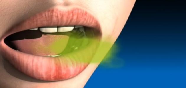 طرق إزالة رائحة الفم الكريهة نهائياً