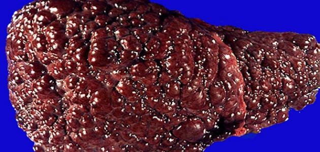 درجات تليف الكبد موضوع