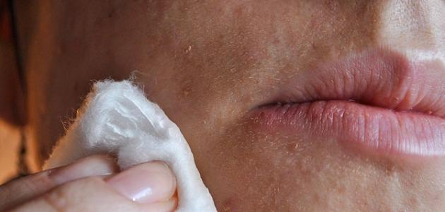 طرق التخلص من حبوب الوجه