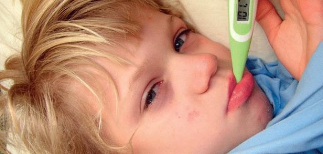طرق تنزيل الحرارة عند الأطفال