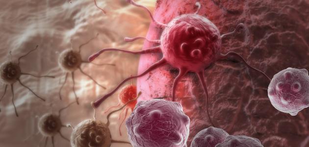 هل مرض السرطان وراثي %D9%87%D9%84_%D9%85%