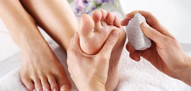 طرق علاج تشقق القدمين