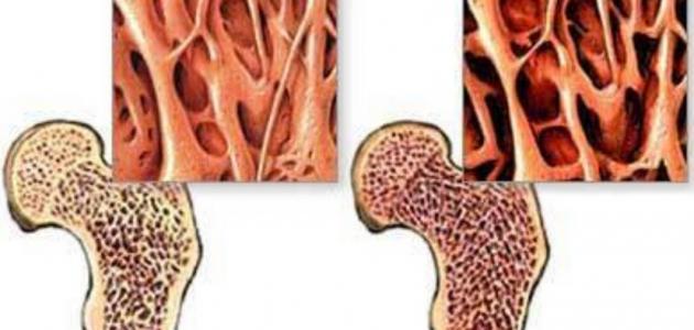 أهمية الغضاريف للعظام