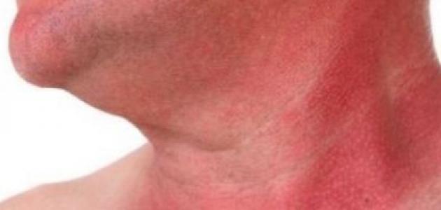 طريقة إزالة حروق الشمس من الوجه