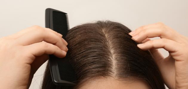 طرق لإزالة القشرة من الشعر